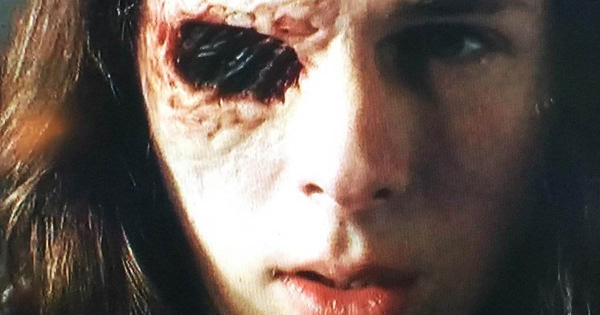 The Walking Dead Chandler Riggs Shares Pics Of Carl S Eye